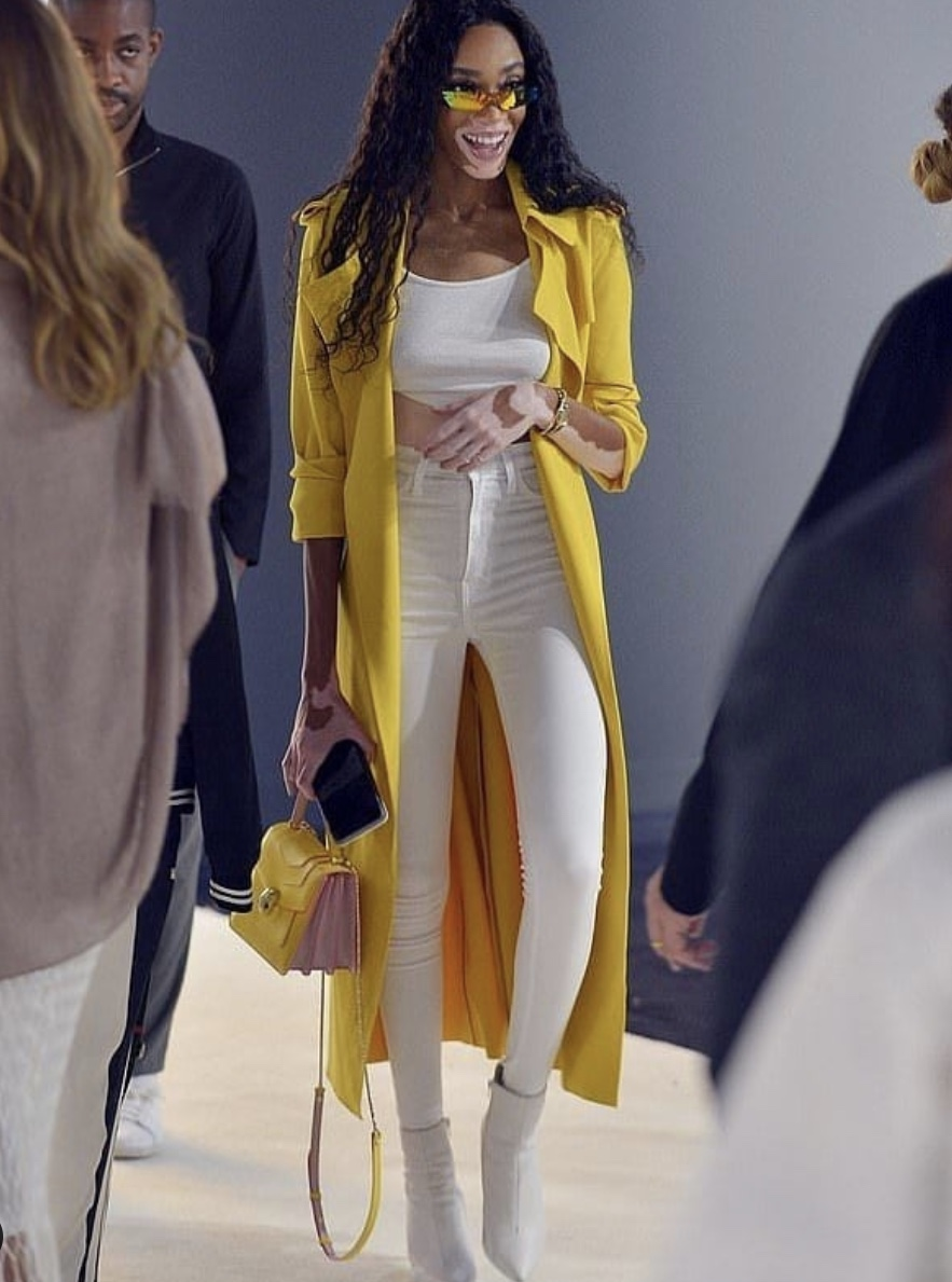Winnie Harlow Yellow Longline Jacket StyleRave  colors-that-go-with-yellow-clothes