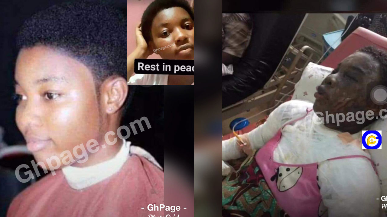 Boyfriend-pours-acid-on-girlfriend-after-she-dumped-him-after-he-bought-her-iphone-11