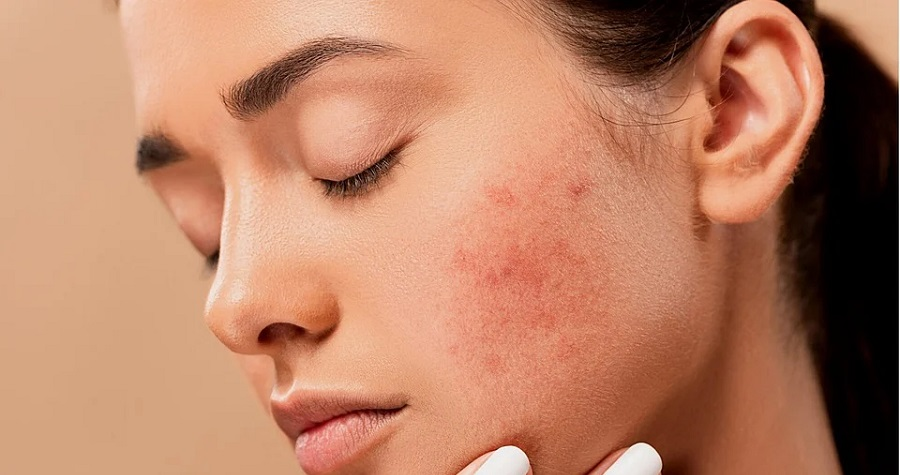 Effective Ways to Fade Adult Acne Scarring